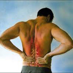 Non-Specific-Low-Back-Pain