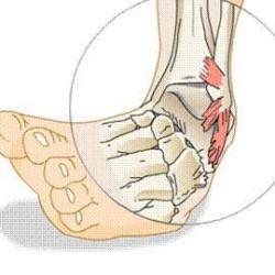 Acute Ankle Sprains